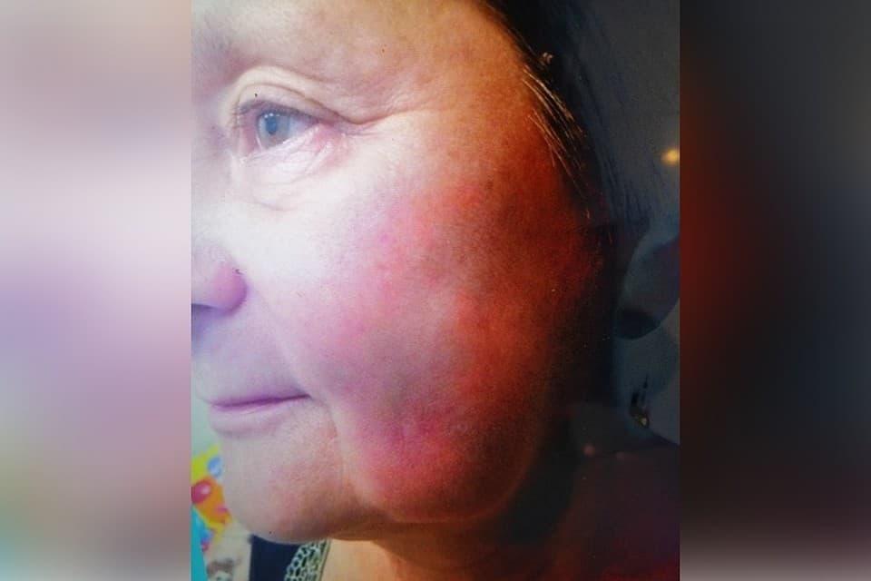 В башкирском Кумертау женщине, после визита к стоматологу, потребовалась помощь невролога